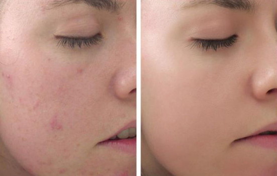 Trị mụn da khô hiệu quả với Obagi Clenziderm Dry Set